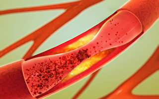 坏胆固醇和中性脂肪高 是动脉硬化的警讯