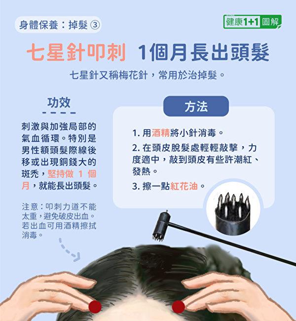 防掉发第四招:用七星针(梅花针)叩刺,可以治疗掉发,特别是发际线后移和小的斑秃。(健康1+1/大纪元)