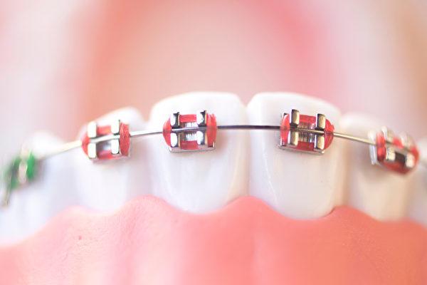 """""""钢线矫正器""""算是历史悠久的传统牙齿矫正方法之一。(Shutterstock)"""