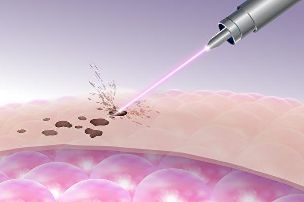 老人斑,相當不容易淡化,必須藉由雷射治療,才能真正消除。(Shutterstock)