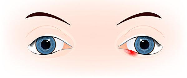 麥粒腫,俗稱針眼,是眼皮或眼瞼下的皮脂腺受到細菌感染,導致眼睫毛邊緣出現紅腫、長膿包的現象。(Shutterstock)