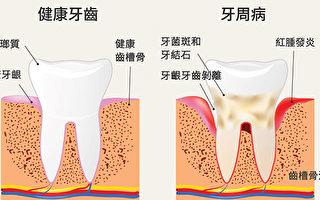 華人好發的口腔疾病──牙周病