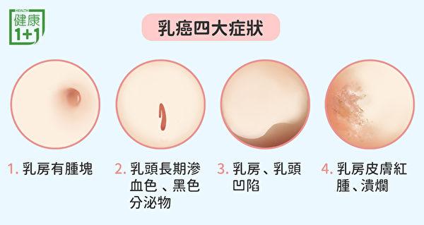 常見的乳癌症狀包括乳房有腫塊、乳頭長期滲血等。(健康1+1/大紀元)