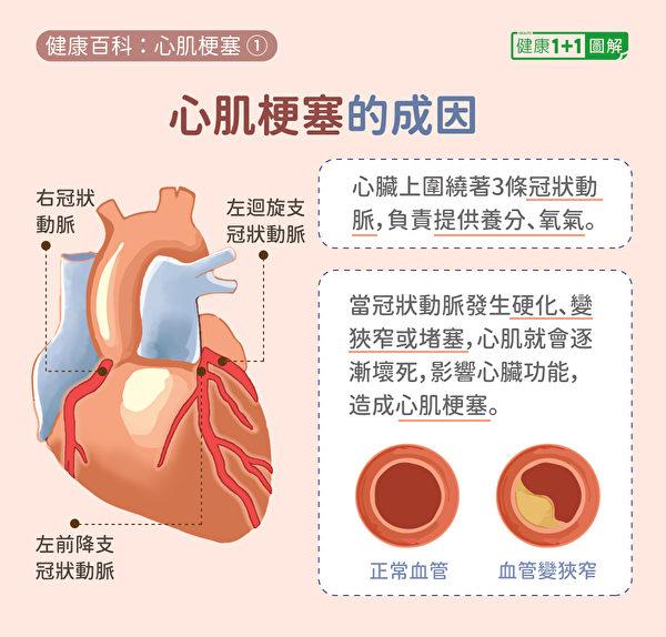 心肌梗塞原因在于冠状动脉硬化、狭窄或堵塞。(健康1+1/大纪元)