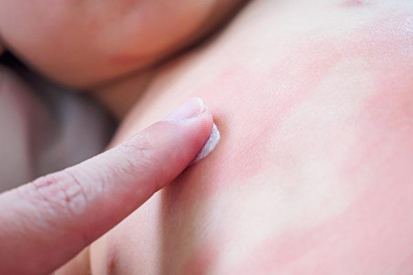 荨麻疹异常的痒,孩子如果不停搔痒,出现的红疹块会更多,所以必须先止痒。 (Shutterstock)
