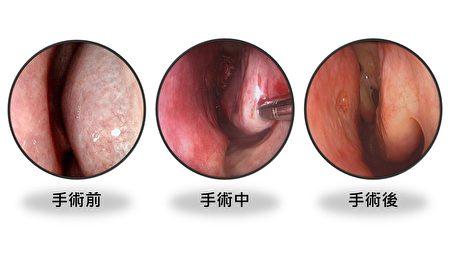 患部手術前中後的比較。