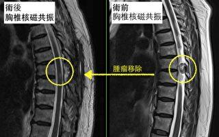 下肢麻木 小心脊椎腫瘤找上你!