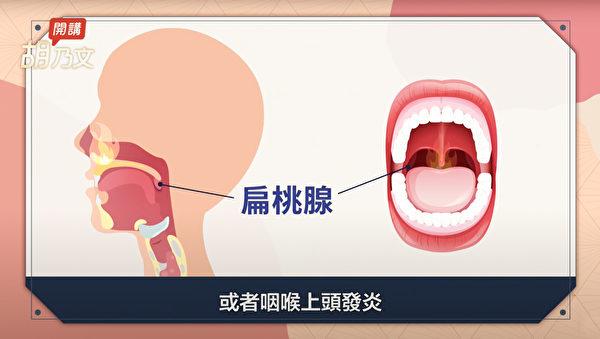 扁桃腺是淋巴组织,起到了过滤并筛掉病菌、病毒的重要作用。(胡乃文开讲提供)