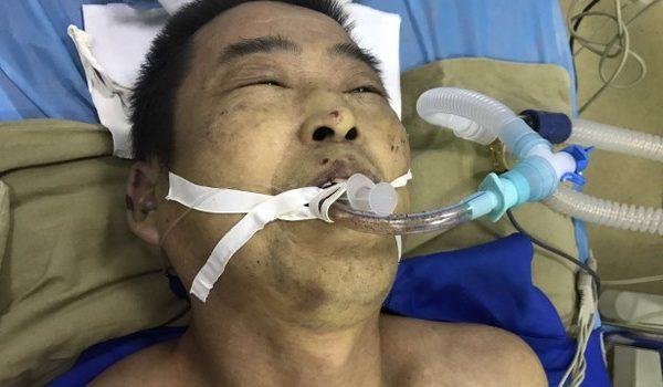 天津法輪功學員楊玉永在看守所離奇死亡,渾身傷痕纍纍。(受訪者提供)