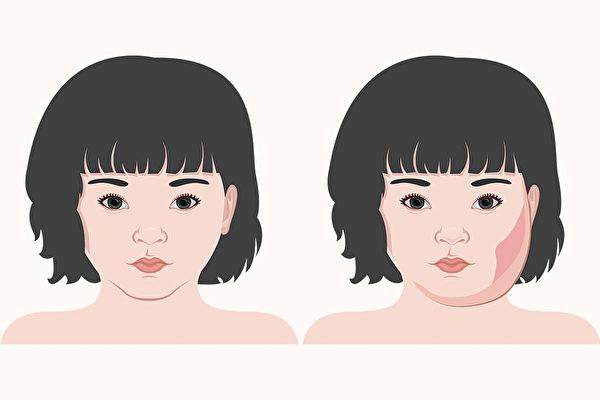 腮腺炎是由腮腺炎病毒引起的一种急性传染病,以发烧、耳下腮部肿胀疼痛为主要症状。(Shutterstock)