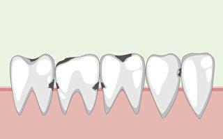 蛀牙、口腔癌都和口腔菌有关 有人永远不蛀牙