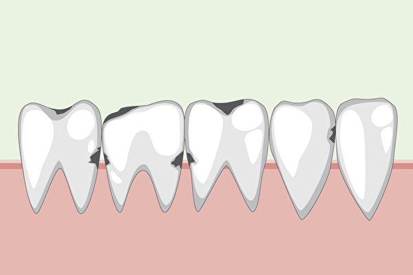 人的蛀牙、牙周病和口腔癌都和口腔菌有關。(Shutterstock)
