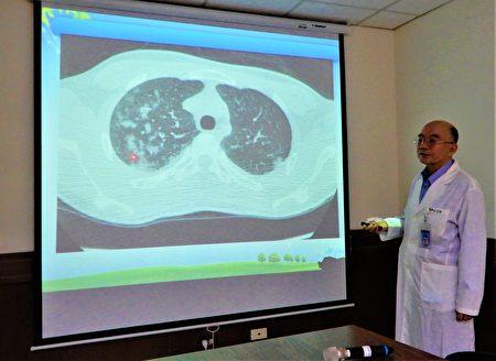 医师吕克桓说,这名男学生有严重双侧肺炎、肋膜积水。