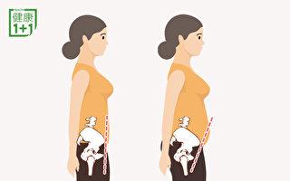 小腹凸、腰酸可能是骨盆前傾 2動作「瘦」下來