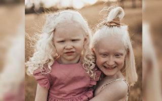 從恐懼到堅強 澳洲媽媽養育兩個白化病女兒