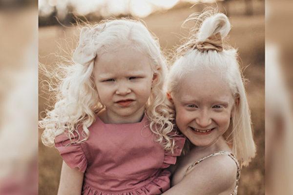 从恐惧到坚强 澳洲妈妈养育两个白化病女儿