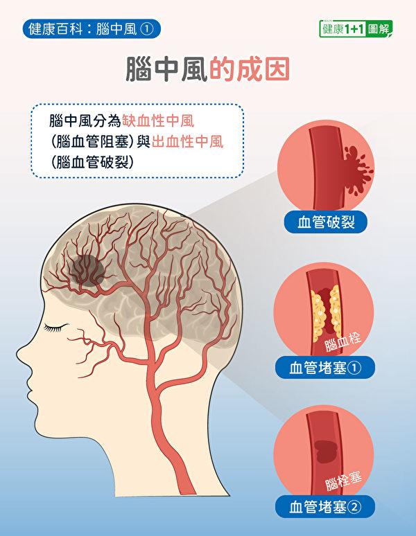 脑中风分为缺血性中风(脑血栓和脑栓塞)以及出血性中风(脑出血)。(健康1+1/大纪元)