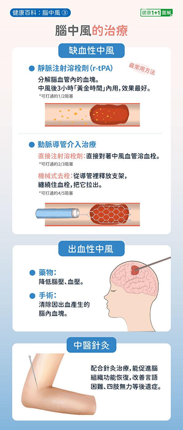 脑中风的治疗方法,其中最常见方法是注射静脉血栓溶解剂r-tPA。(健康1+1/大纪元)