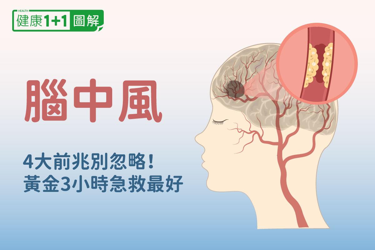 腦中風4大前兆別忽略!中風症狀、治療和復健全圖解  缺血性中風  腦 ...