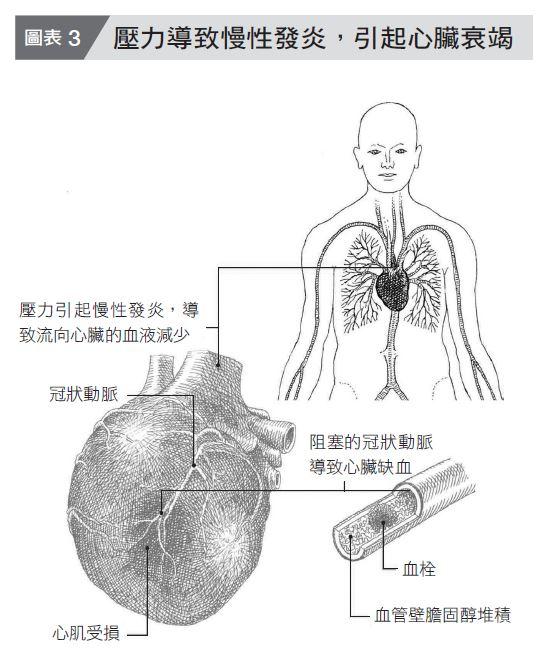 压力引起的慢性发炎,可造成心肌梗塞、心脏衰竭。(方言文化提供)