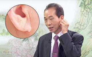 耳垂2征兆恐是高血压!不用血压计的判断方法