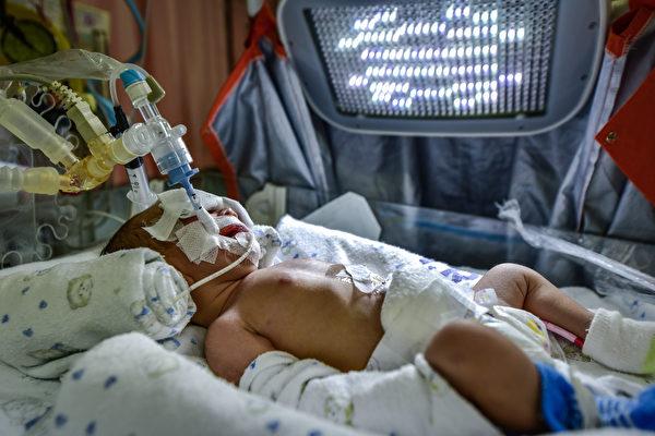 英国医院新呼吸疗法挽救一个婴儿的生命