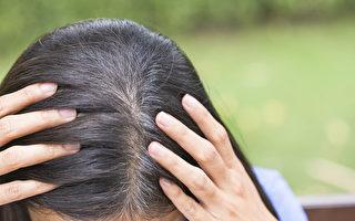 长白发可能是身体警讯 10种原因一定要当心