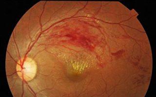 年逾50有三高病史者 視力糢糊恐眼中風上身