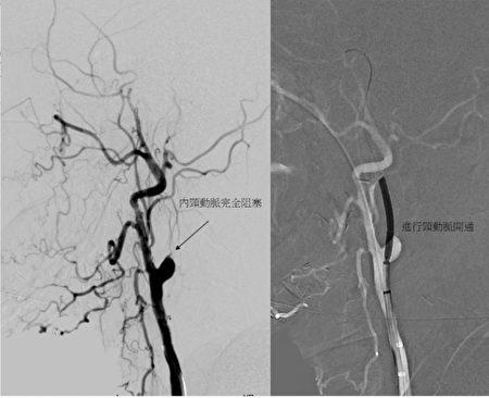內頸動脈完全阻塞(左圖),頸動脈開通(右)