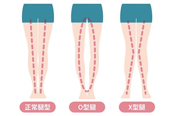 孩子腿型如何发育?有X型腿或者O型腿怎么办?(Shutterstock)