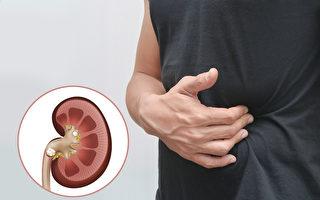 腰痛可能是结石在体内?教你分辨腰痛和结石痛