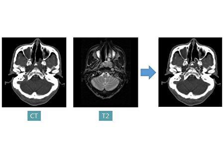 以MRI影像圖示為例,AI醫療影像處理技術使用「影像分割」將左方得到的原始圖,透過將影像細分為多個子區域的過程,讓影像可更容易理解和分析。
