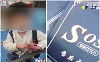 误食减肥巧克力 广东3岁童吐舌翻白眼