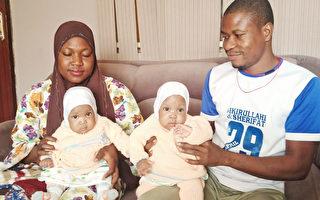 連體雙胞胎女嬰在尼日利亞醫院成功分離