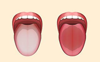 看看舌头就知道 简单3招 判断你正气是否充足