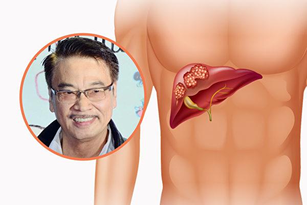 肝癌一發現多是晚期 奪命快 3招預防