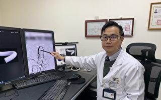 肠子也会中风 医师重建血管救命
