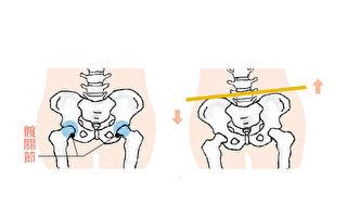 骨盆不正让你腰痛?3招自我检测骨盆歪斜