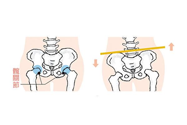3个方法,自我检测骨盆歪斜。(苹果屋提供/大纪元合成)