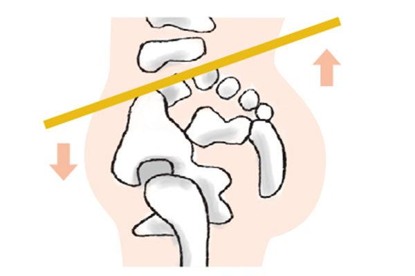 骨盆前倾、后倾,容易造成腰痛、腰椎椎间盘突出。(苹果屋提供)