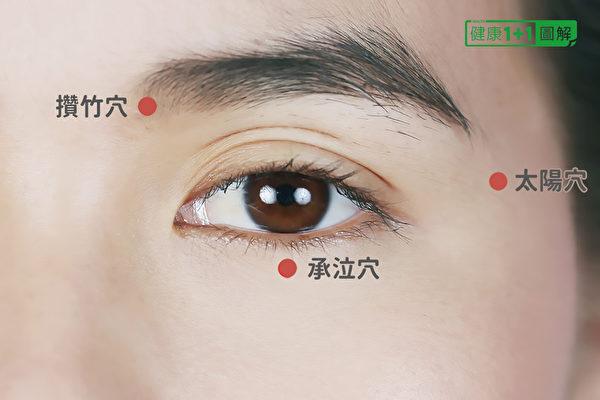 太陽穴、攢竹穴和承泣穴,位於眼睛周圍。(健康1+1/大紀元)