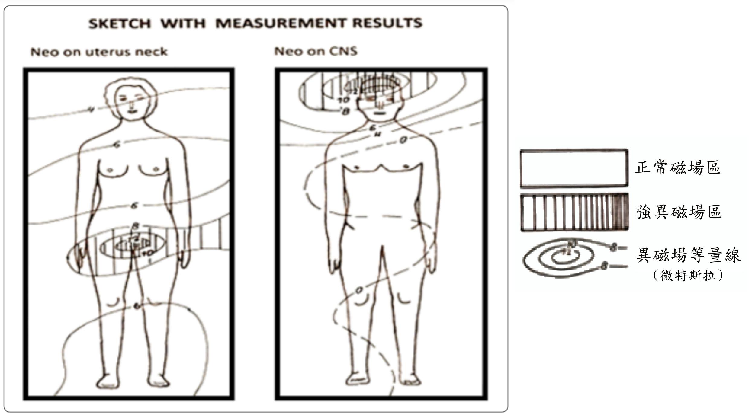 图为崔芬诺维奇在患者床面上量测出的异磁场分布图。左为罹患子宫颈癌女子的床;右为罹患脑癌男子的床。强异磁场区与癌症部位吻合。(崔芬诺维奇提供)
