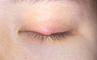 長針眼怎麼辦?針眼有哪些症狀?中醫告訴你