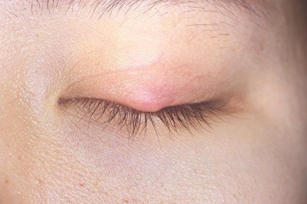 针眼又称麦粒肿,症状是眼皮出现红肿、痒痛、脓块,此时该怎么办?(Shutterstock)