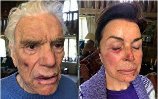 法大亨、Adidas前老闆夫婦遭入室搶劫和毆打
