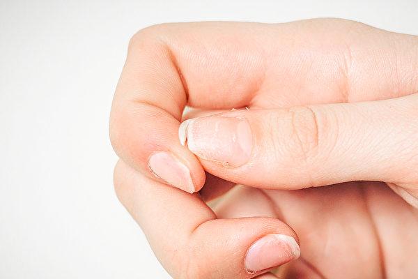 指甲如果脆弱、容易斷,好好攝取營養可改善。(Shutterstock)