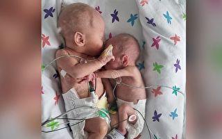 剛出生即被分開 早產雙胞胎團聚時竟親密擁抱
