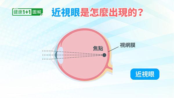 物体反射的光线,如果落在视网膜之前,就是近视。(健康1+1/大纪元)