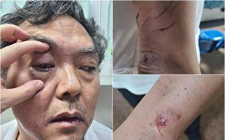 維權律師陳科雲夜間遇襲 曾被維穩驅離廣州