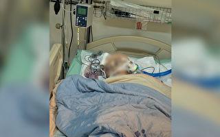 柔道童遭重摔 昏迷16天脑压降至正常值